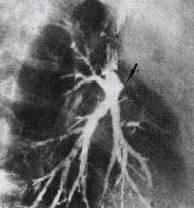[胸部征象] 支气管截断征 的影像表现与临床意