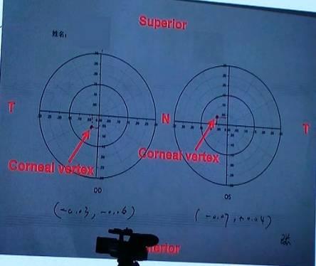 【专家推荐.视频】王雁口角:飞秒激光小切视频元五次教授图片